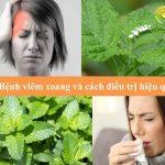 Những Điều Cần Biết Về Triệu Chứng Bệnh Viêm Xoang