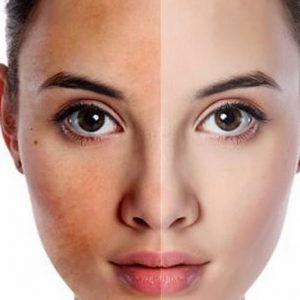Kem Face Dưỡng Trắng Da Havona Collagen E28 có an toàn không