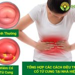 cách điều trị viêm cổ tử cung tại nhà