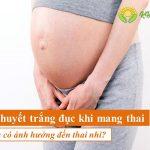 Ra huyết trắng đục khi mang thai có ảnh hưởng gì đến thai nhi không?